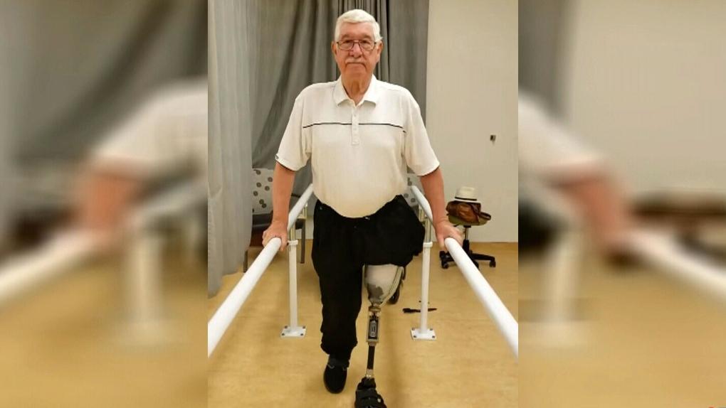 Community members raise money for reverend's prosthetic leg