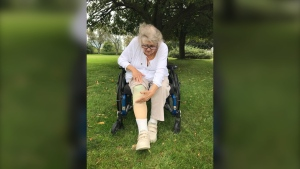 Erin Caron shows where her right leg was amputated mid-shin nine years ago (Pauline Chan/CTV News Toronto)