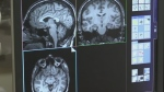 New program aims to help brain injury patients