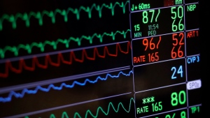 A screen displays a patient's vital signs