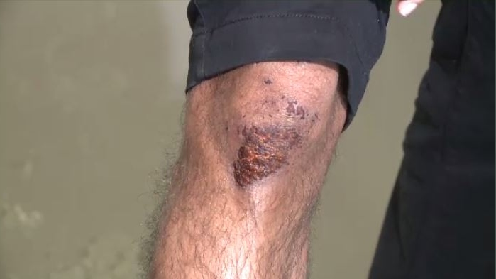 Twenty-four-year-old Akashdeep Singh Brar says it still hurts to bend his knee. He also has scrapes and bruises after an altercation with a customer.
