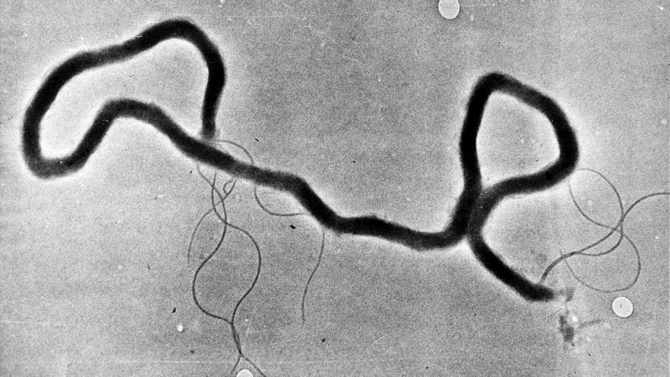 The organism treponema pallidum, which causes syphilis, is seen through an electron microscope in this May 23, 1944 file photo. (The Associated Press)