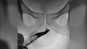 Tweezers in urethra