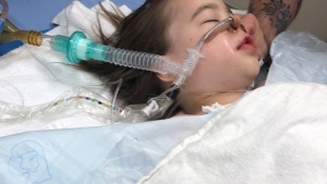 Five-year-old Autumn Ferguson's lungs collapsed during dental surgery.