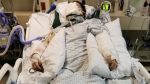 Desiree Evancio is already recovering from her third life-saving surgery in Vancouver General Hospital as seen in this photo provided by the GoFundMe page set up for her.