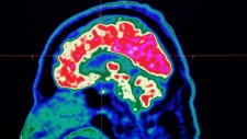 A new study looked at the brain circuitry responsible for upgrading or downgrading pain signals, likening the mechanism to how a home thermostat controls room temperature. (AFP)