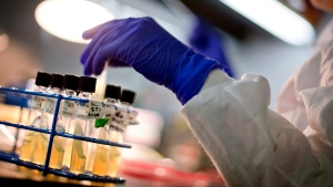 In this Monday, Nov. 25, 2013 file photo, a microbiologist works with tubes of bacteria samples in an antimicrobial resistance and characterization lab within the Infectious Disease Laboratory at the Centers for Disease Control and Prevention in Atlanta. (AP Photo/David Goldman)