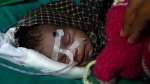The baby girl, who is in an incubator, is now 'out of danger' and responding to antibiotic treatment, doctors say. AFP