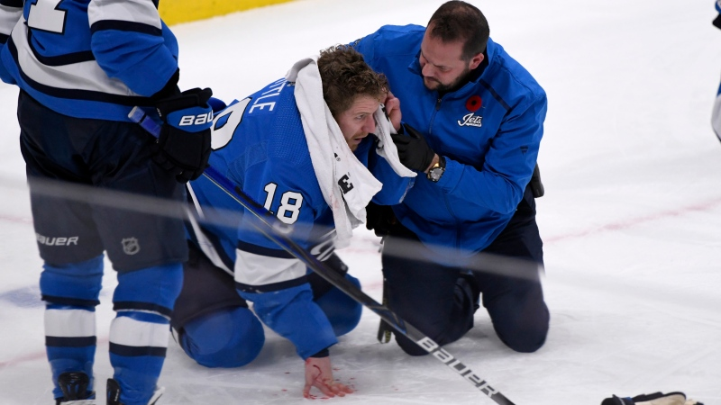 Winnipeg Jets' Bryan Little (18) is helped after getting hit in the head with the puck against the New Jersey Devils during third period NHL action in Winnipeg on Tuesday, Nov. 5, 2019. THE CANADIAN PRESS/Fred Greenslade