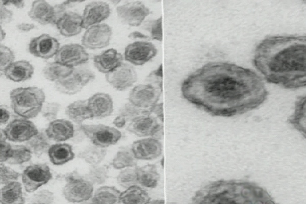 The virus, XMRV, is known to cause certain types of cancer in animals, and researchers say they have discovered it in prostate cancer cells in humans.