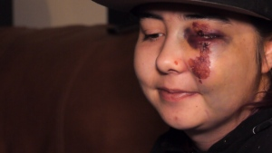 Cassidee Hogan says she was attacked after intervening in a heated conversation about Don Cherry during an LRT ride on Nov. 13, 2019.