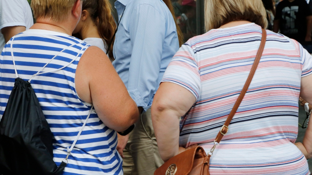 Obesity-related cancers rising in young Canadians, study shows