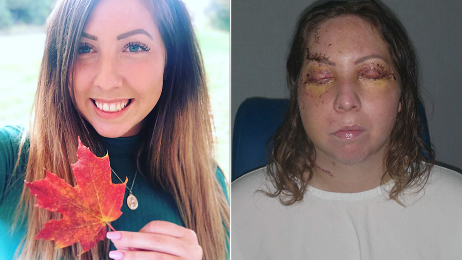 Ottawa woman badly beaten at Mexican resort
