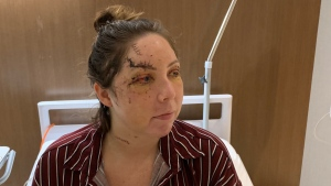 Ottawa woman Lexie York recovers in Cancun hospital after a vicious attack.