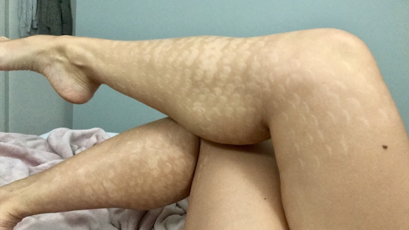 Danielle Nadeau says a laser hair removal treatment left her with cheetah-like marks on her legs and bikini area.