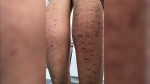 Lawsuit claims laser hair removal caused burns