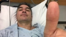 Man paying out-of-pocket for cancer treatment