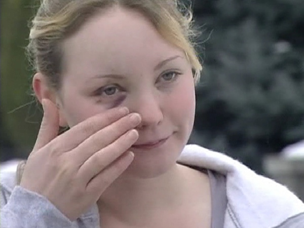 Crystal Young told CTV News a member of the Kelowna RCMP struck her in the face during a February 2009 altercation. (CTV)