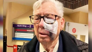 Man badly beaten in road rage incident