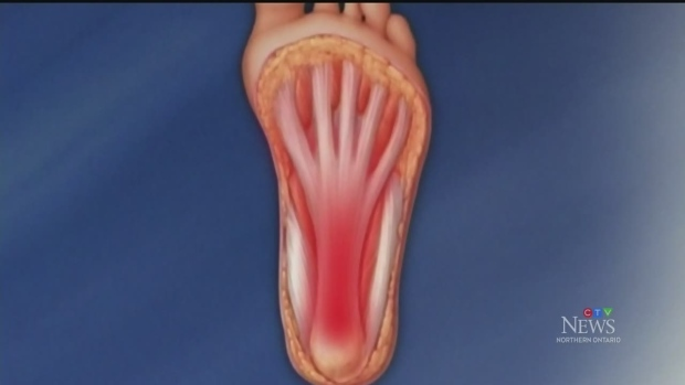Talking to a foot health expert about heel pain