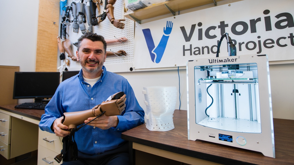Victoria Hand Project awarded $1M to develop low-cost prosthetics, spinal braces