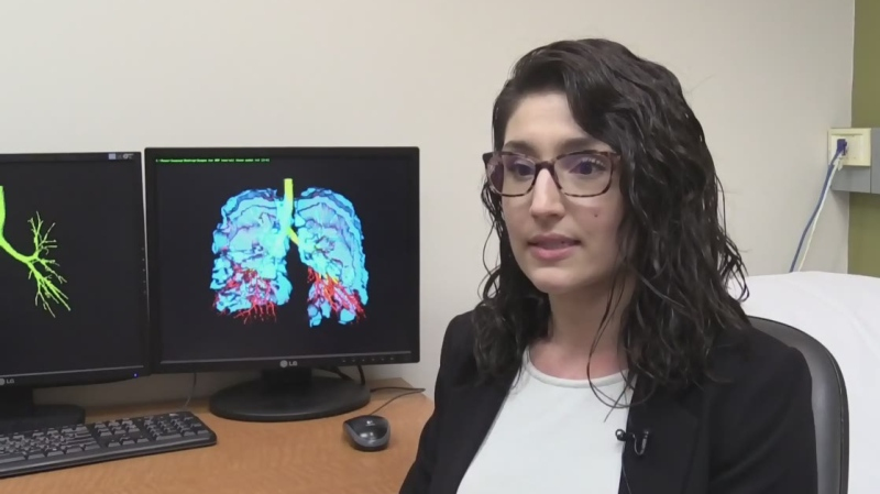 PhD candidate and asthma study author Rachel Eddy speaks in London, Ont. on Wednesday, Dec. 4, 2019. (Celine Zadorsky / CTV London)