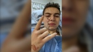 Anthony Seyer was hit in the face with a glass bottle after confronting two men whom he says made sexual advances towards his sister. (Courtesy: Anthony Seyer)