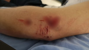 Images of the mail carrier's wounds have been censored due to their graphic nature: (CUPW Victoria Local 850)