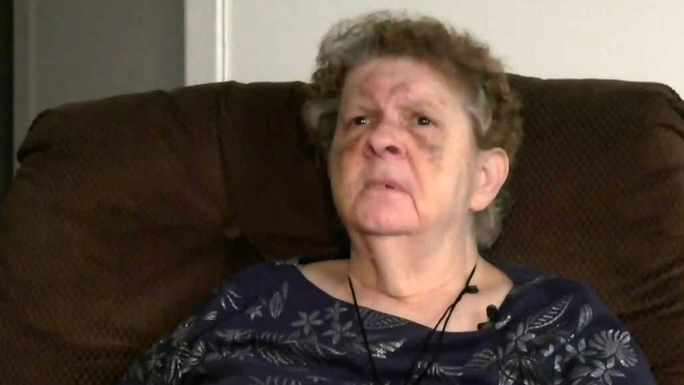75-year-old falls, hits her head, then spends 10 hours in an ER hallway