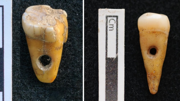 This image shows the teeth that were found by researchers, containing neatly drilled holes. (University of Copenhagen)