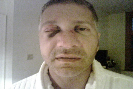Elio Pagliarulo alleges he was brutally attacked by a group of men who ordered him to pay back money to Paolo Catania. (Photo Courtesy: Elio Pagliarulo)