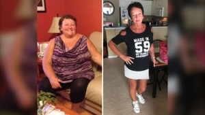 Lindy Cellucci lost 150 pounds, or half her body weight, after she survived breast cancer.