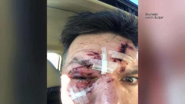 Martin Burger of the Ottawa area says this is the result of his windshield being smashed when a flying chunk of ice shattered it on January 16, 2020