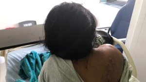 Dina Blanco show injuries on her back during an interview at Luis Fabrega Hospital in Santiago, Panama, Sunday, Jan. 19, 2020. The survivor of a cult ceremony that killed 7 people in her remote village in Panama says she was ordered to close her eyes, was beaten and knocked unconscious during the ritual. Her father and her son managed to escape but Blanco and her daughter Inés, who died, were not so lucky. (AP Photo/Juan Zamorano)