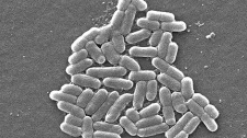 Under a magnification of 6836x, this scanning electron micrograph (SEM) depictes a number of Gram-negative Escherichia coli bacteria of the strain O157:H7. (Courtesy of Centers of Disease Control and Prevention)