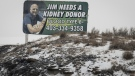A billboard featuring Jim Lomond, who is looking for a kidney donor, in Drumheller, Alta., Thursday, Jan. 16, 2020. Jim Lomond, a 54-year-old former oilfield worker, has been waiting for the last four years for his fourth kidney transplant. He has rare B-negative blood, which makes finding a donor that much more difficult. THE CANADIAN PRESS/Jeff McIntosh