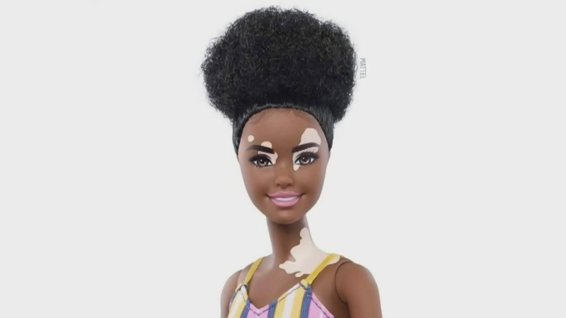 New line of dolls with prosthetic limbs, vitiligo