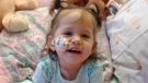 One-year-old Savannah Hill, who is in need of a stem-cell transplant, is seen in this family photo.