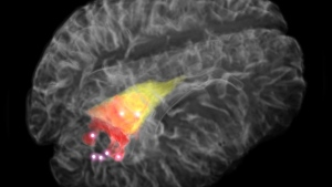 The image depicts a 3D rendering of the brain, with the cancer detectable on magnetic resonance Imaging (MRI) in red and yellow. (THE CANADIAN PRESS/HO-Laboratory for Radiological Optics and the Montreal Neurological Institute)