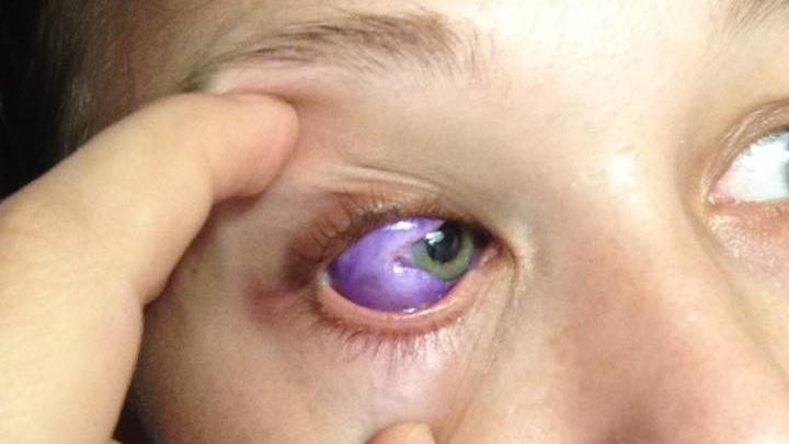 Catt Gallinger after her eye tattoo procedure. (Catt Gallinger/Facebook)