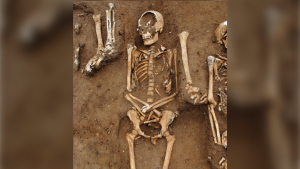 The Black Death was one of the most devastating pandemics in human history, killing an estimated 75 to 200 million people across Eurasia.
