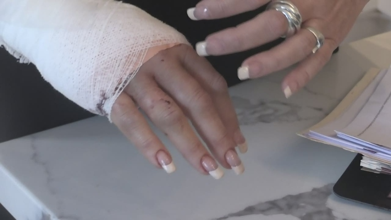 Carrie Stiles shows her bandaged hand following an alleged vicious dog attack in Barrie on Sun., Feb. 18, 2020. (Aileen Doyle/CTV News)