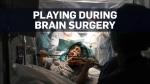 Violinist plays while a surgeon operates on her br