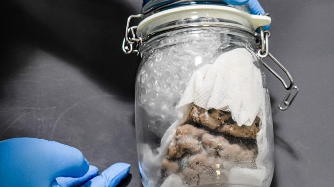 Human brain specimen seized at Bluewater Bridge