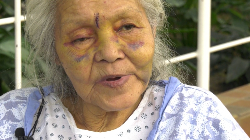 Dora Campbell, 72, says she was attacked by her stepdaughter's ex-boyfriend before he set their house on fire Saturday morning. Feb. 19, 2020. (CTV News Edmonton)