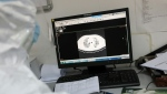 Previous diagnosis of the coronavirus in China has relied on lung imaging. AFP.