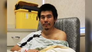 Daniel Anowak is recovering at the Health Sciences Center in Winnipeg. (Source: Danton Unger/ CTV News Winnipeg)