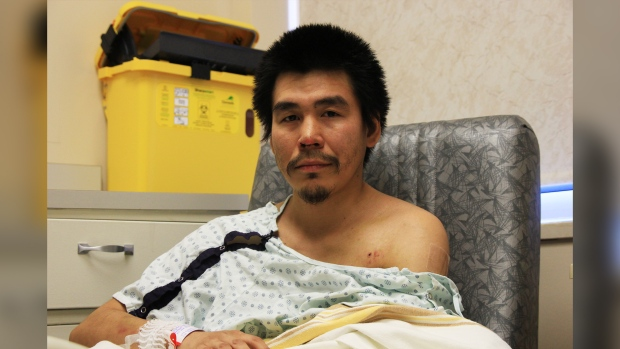 Quebec man shot and left for dead in the wilderness of Northern Manitoba