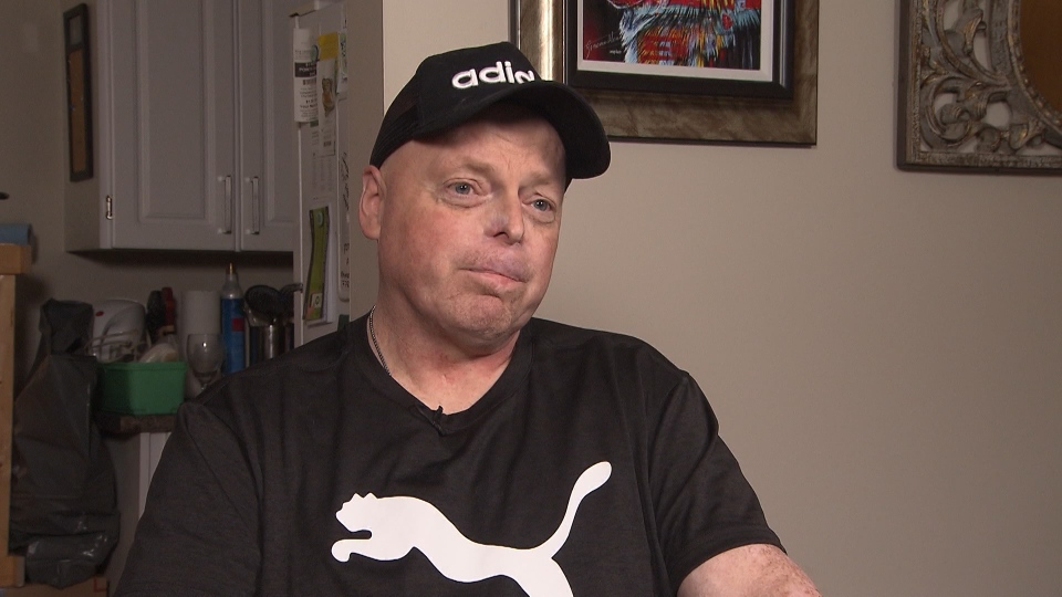Rick Thompson had all four of his limbs amputated in 2015 after contracting bacterial meningitis and hopes to become Canada's first double-hand transplant recipient.