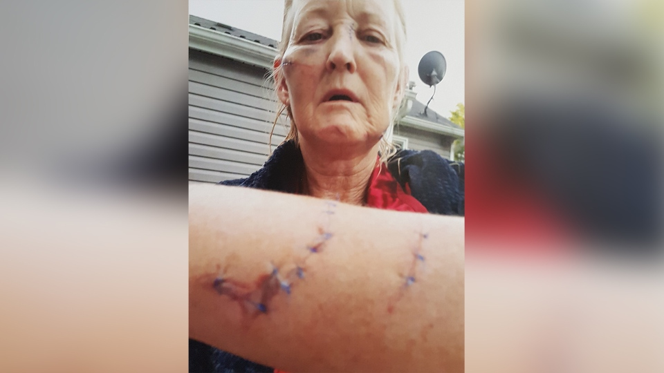 Karen Collins-Scheltgen shows her injuries as she recovers in this image provided by the courts.